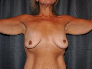 Manhattan Breast Augmentation Before 7